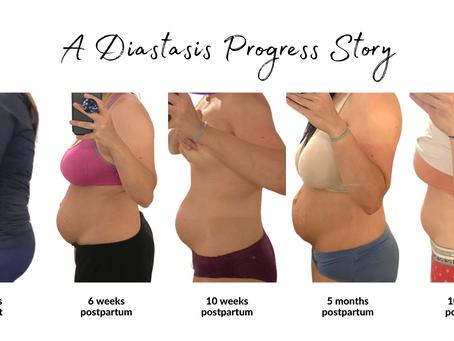 A Diastasis Recti Client Progress Story