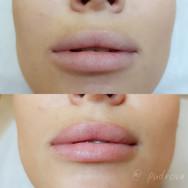 акварельные губ до и после