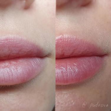 губы до после