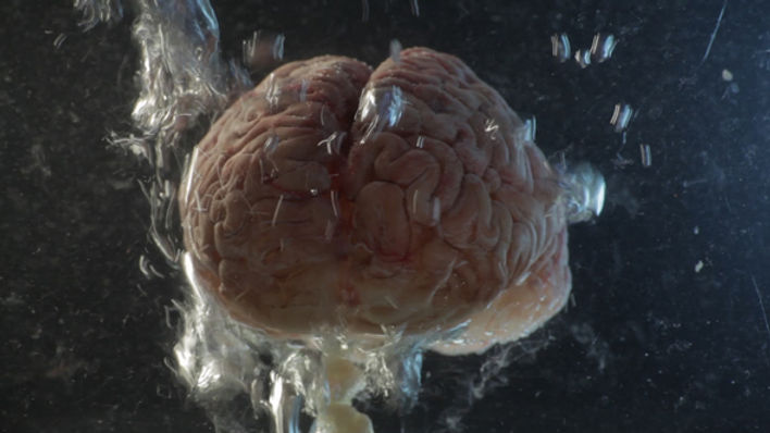 Brain in a Water Tank with Oxygen 03 Pre
