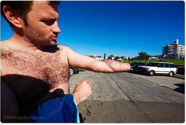 20090622-left-arm.jpg