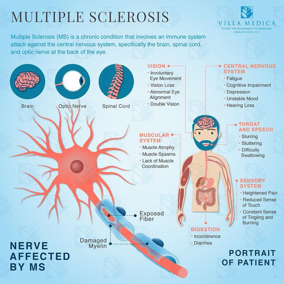 villa-medica-multiple-sclerosis-portrait