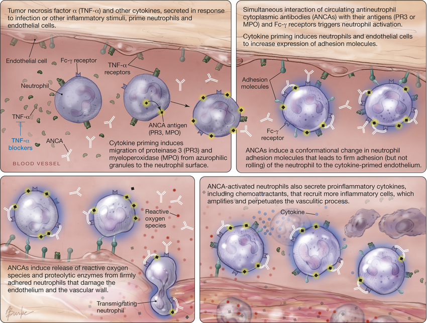Model-of-Pathogenesis-of-Antineutrophil-