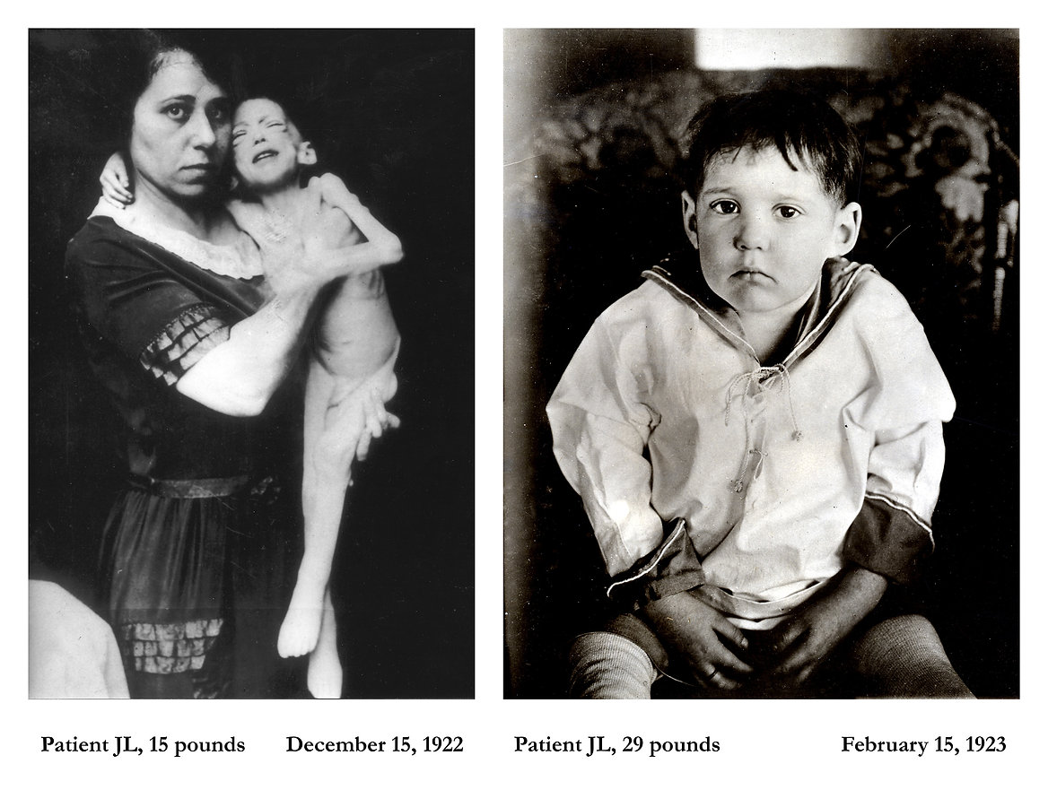 before-and-after-insulin-6-HR.jpg