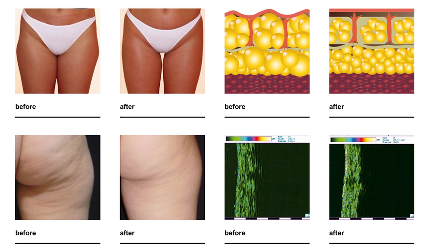 shockwave Therapy for cellulite before/after