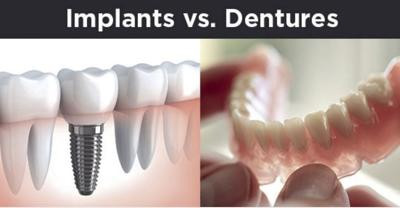 The Top 5 Reasons Patients Choose Implants Over Dentures