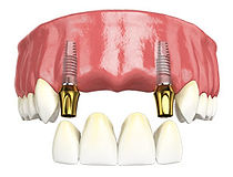 multiple teeth implant.jpg