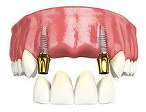 multiple teeth implant.jpg