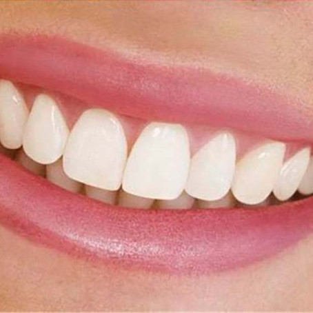Want Natural Looking Dentures? What You Need to Know!