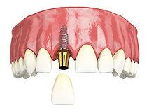 single_tooth_implant.jpg