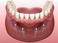 implant reatined dentures.jpg