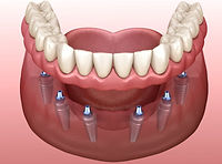 implant reatined dentures.jpg