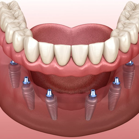 The Top 5 Reasons Patients Prefer Implants over Dentures