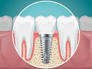 implant.jpg