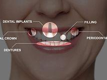 full mouth rehabilitation.jpg