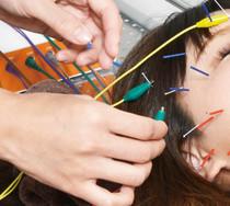 電気美容鍼(はり)美顔鍼