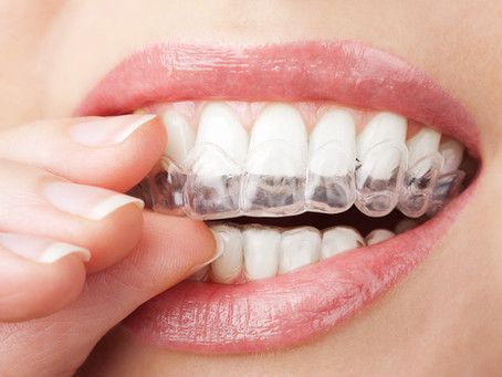 What are the Benefits of Invisalign®?