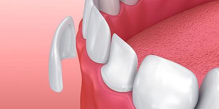dental veneers nj.jpg