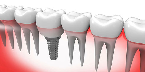 Dental Implant Services NJ Smile Center by Dr. Vocaturo in Colts Neck, New Jersey