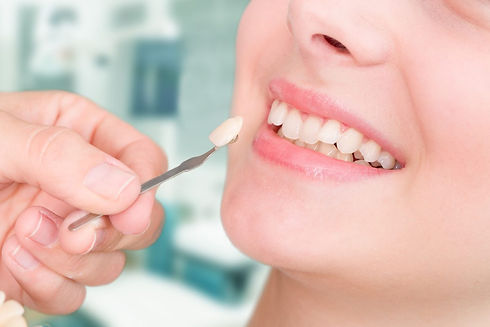 Dental Veneers in monmouth county, new jersey