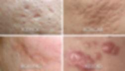 acne-scars-types-600x343.jpg