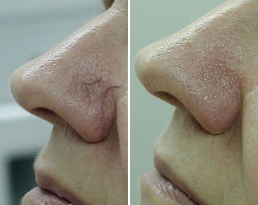 before-after-vein-removal15.jpg