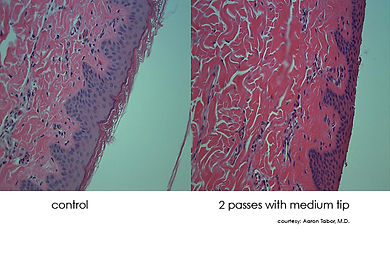 DermaSweep_Technology_Histology.jpg
