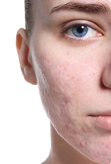 acne-scar-treatment.jpg