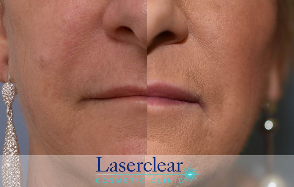 Lip Enhancement with Dermal Filler in Gosford
