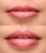 lip-filler-before-after1.jpg