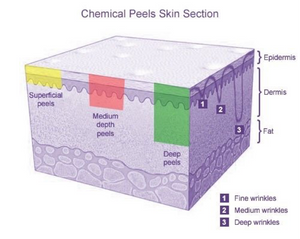 Chemical Peels Skin Selection