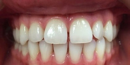 16 Mile Dental | Cosmetic Dentistry | Before and After