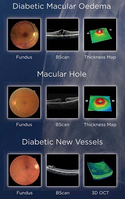 Digital Retinal Imaging | Optometry | Stoney Creek | Eye Exam