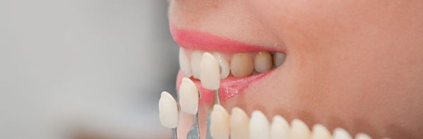Ocean Dental Care | Veneers | Cosmetic Dentistry | Dentist | Burlington