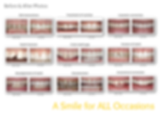 Saginaw Dental Centre | Veneers | Cambridge