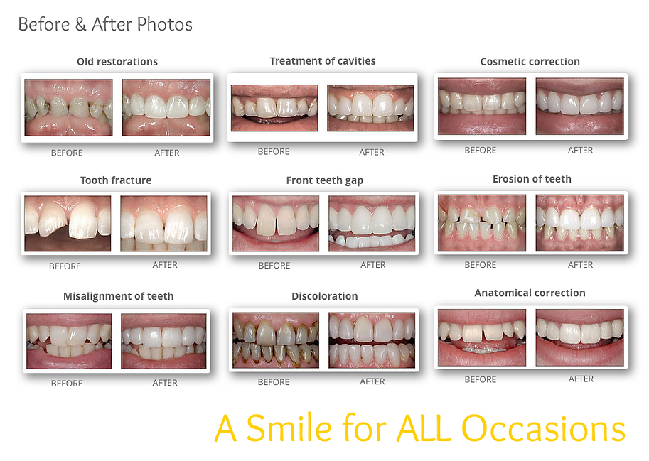 Mississauga Valley Dental Centre | Veneers | Mississauga
