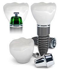 King Street Dentistry | Cambridge | Dental Implants in Cambridge