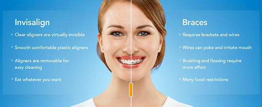 Mississauga Valley Dental | Orthodontic | Braces | Mississauga