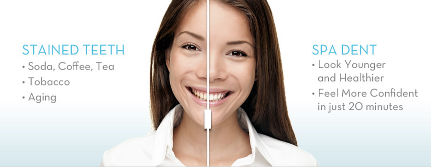 King Street Dentistry | Dentist in Cambridge | Teeth Whitening