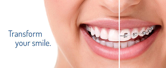 16 Mile Dental | Orthodontic | Braces | Oakville