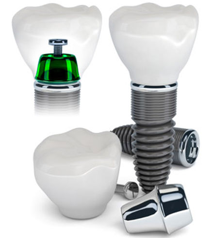 Ocean Dental Care | Dental Implants | Dentist | Burlington