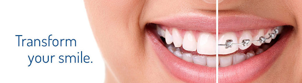King Street Dentistry | Cambridge | Braces in Cambridge