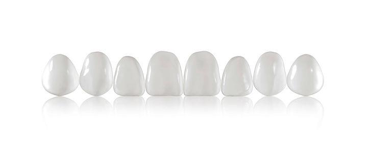 King Street Dentistry | Dentist in Cambridge | Veneers