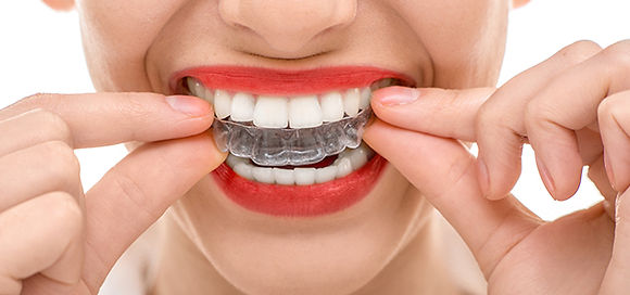 Mississauga Valley Dental | Invisalign in Mississauga
