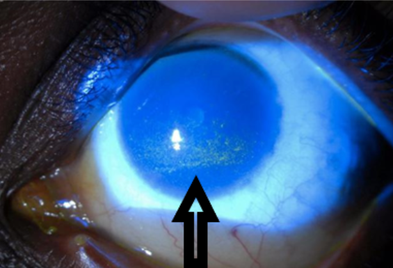 Dry patches in green on the cornea/front part of the eye
