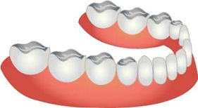 King Street Dentistry | Dentist in Cambridge | Dentures in Cambridge