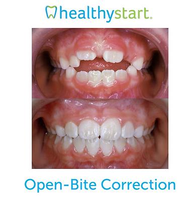 Open-Bite Correction