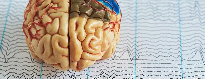 EEG 2.jpg