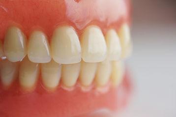 xFull-Dentures-1024x680.jpg