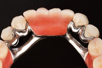 xPartial-Dentures-1024x682.jpg